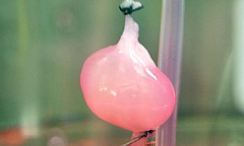 """科学家""""实验室培育肾""""移植老鼠"""