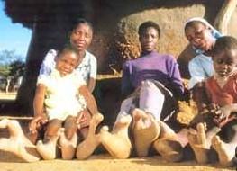非洲部落 人人两脚趾
